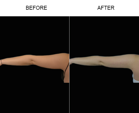 Liposuction Treatment Before & After