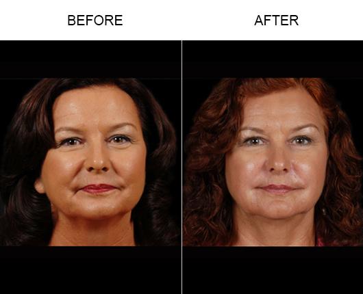 Before And After NaturalFill Facial Filler