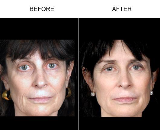 NaturalFill Facial Rejuvenation Treatment Results