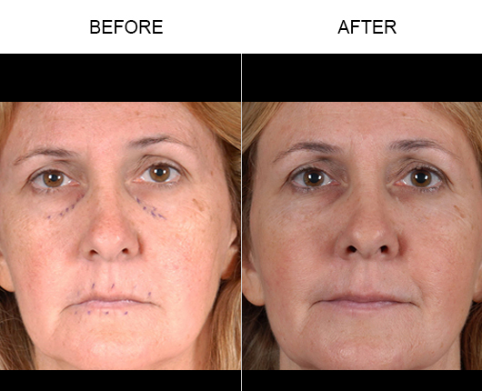 Before And After NaturalFill® Facial Filler Treatment