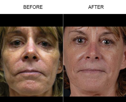 Before & After NaturalFill® Facial Filler Treatment