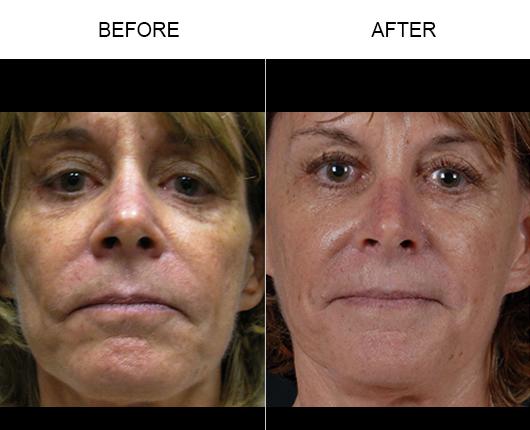 Before & After NaturalFill® Facial Filler Treatment
