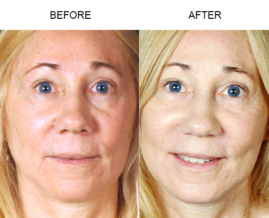 Before And After NaturalFill Facial Filler Treatment