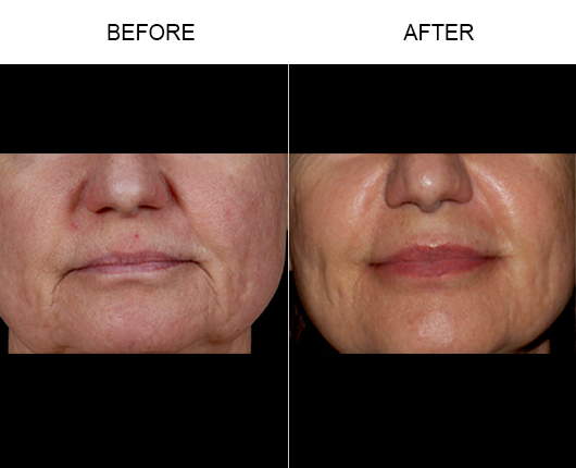 NaturalFill Facial Filler Treatment Before And After