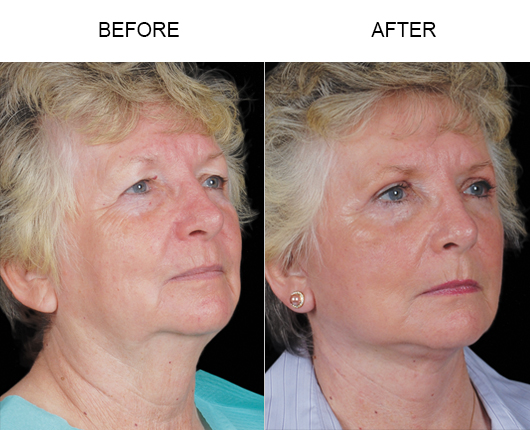 Before & After Facelift