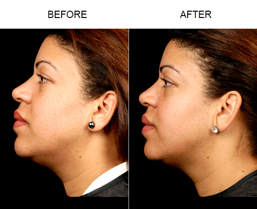 Before & After Neck Lipo