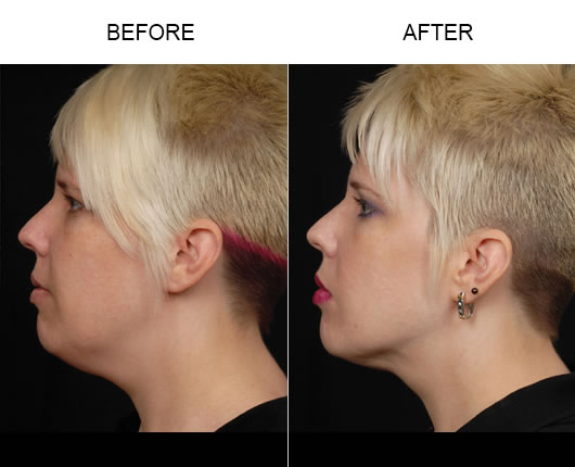LazerLift Treatment Results