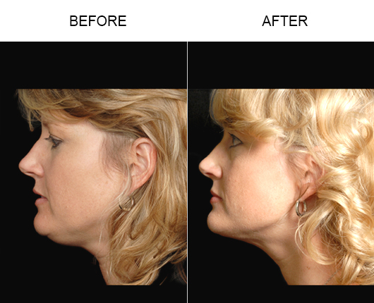 Before And After LazerLift Treatment