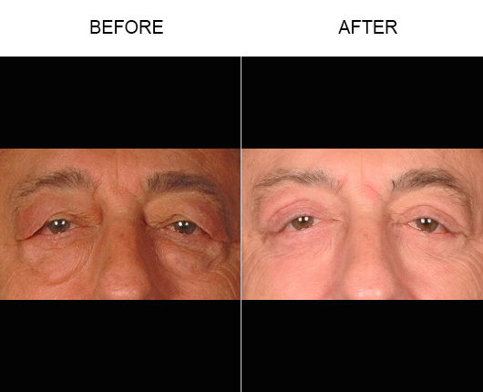 Lower Blepharoplasty Before And After