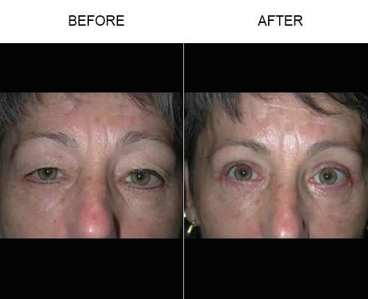 Eyelid Ptosis Treatment Results