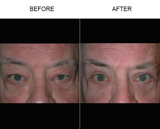 Before And After Eyelid Ptosis Treatment