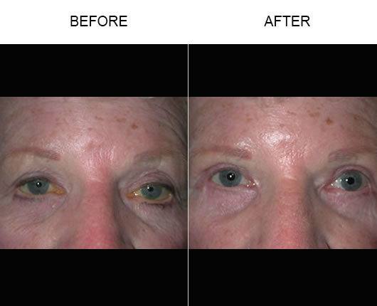 Before & After Eyelid Ptosis Treatment