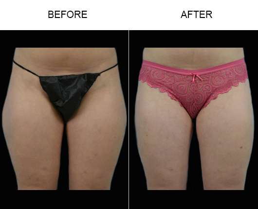 Before & After Liposuction In FL