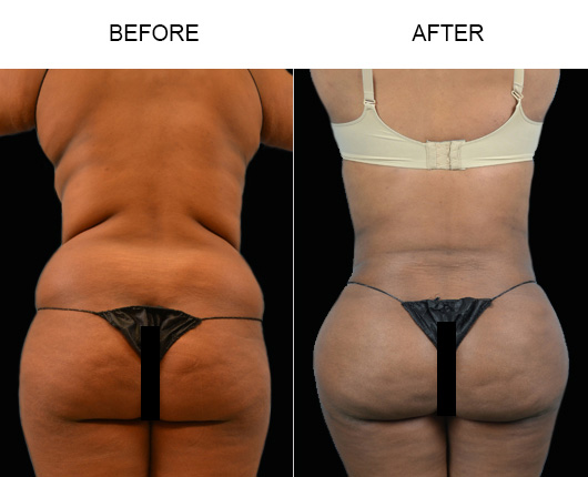 FL Liposuction Results