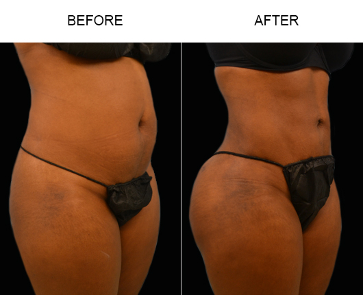 FL Liposuction Surgery Before & After