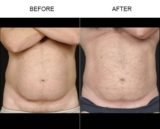 Aqualipo® Before & After Image