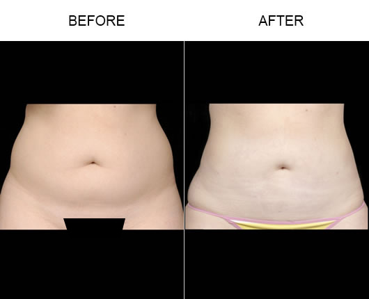 Aqualipo® Liposuction Before And After
