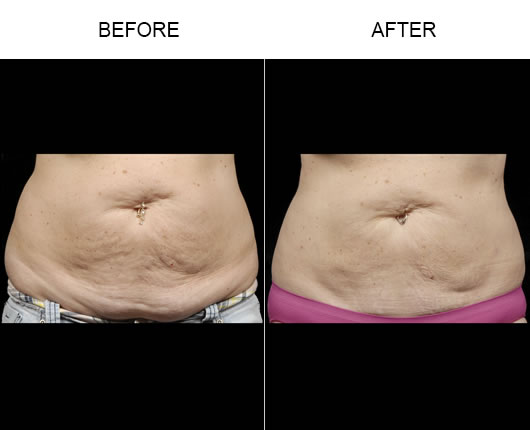 Aqualipo® Liposuction Before & After