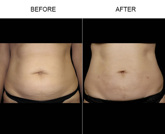 Before And After Aqualipo® Liposuction