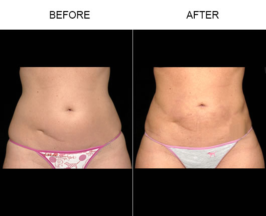 Before & After Aqualipo® Liposuction