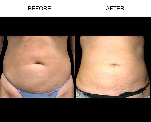 Aqualipo® Liposuction Results