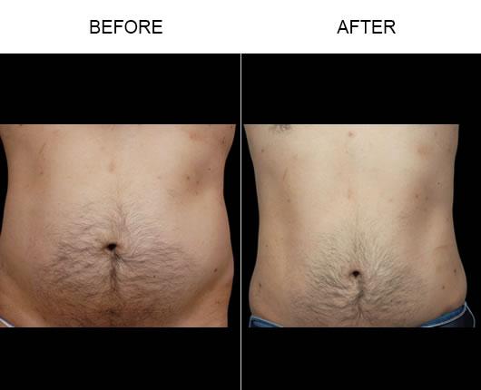 Aqualipo® Treatment Results
