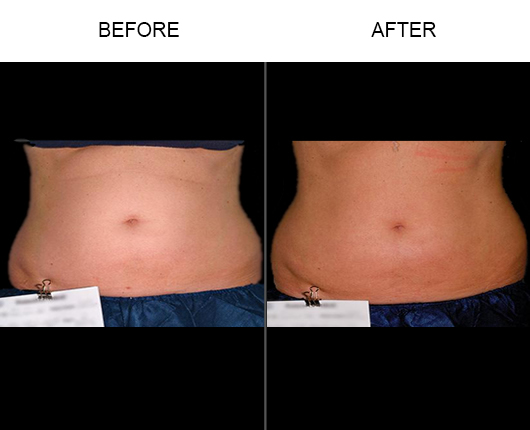Before & After Liposonix®