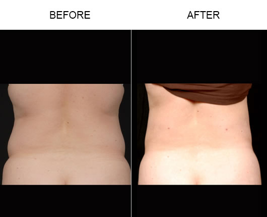 Aqualipo Before & After