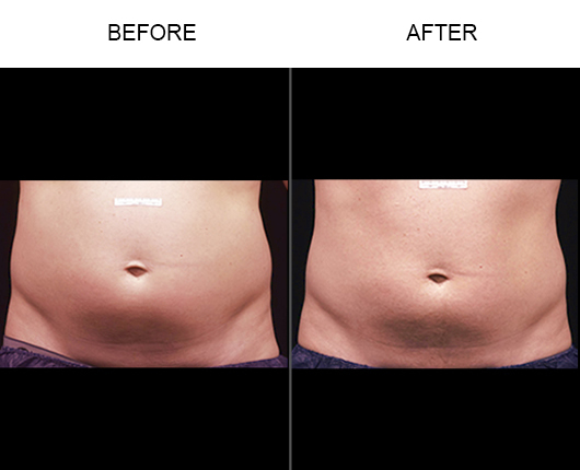 Before And After Liposonix®  Treatment
