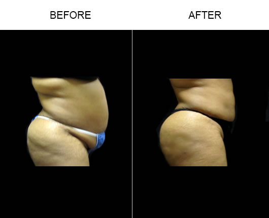 Aqualipo Surgery Before & After