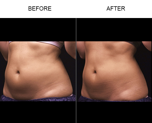 Liposonix® Treatment Results