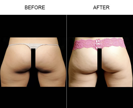 Before And After Aqualipo Surgery