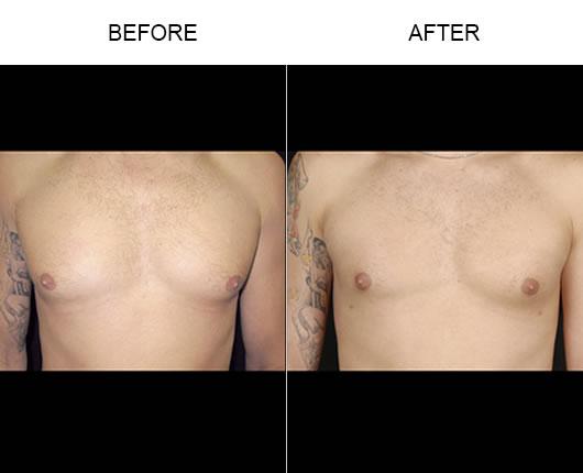 Aqualipo Surgery Results