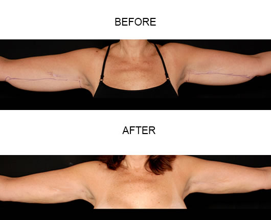 Aqualipo Liposuction Before And After