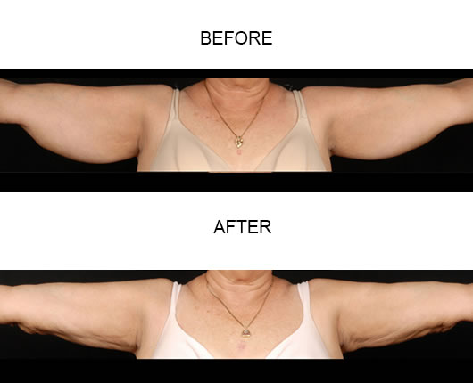 Aqualipo Liposuction Before & After