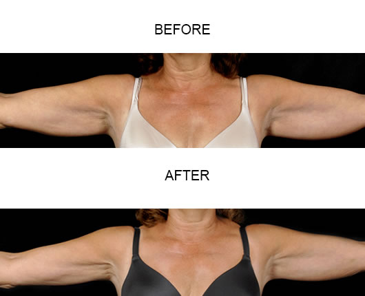 Before And After Aqualipo Liposuction