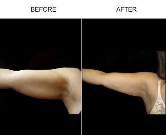 Before & After Aqualipo Liposuction