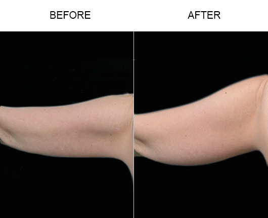 Aqualipo Liposuction Results