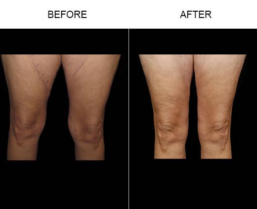 Aqualipo Treatment Results