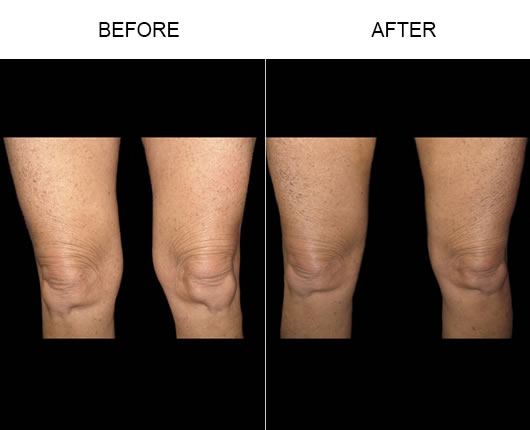 Aqualipo Surgery Before And After