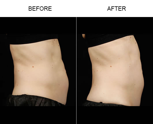 Before & After Sculpsure™