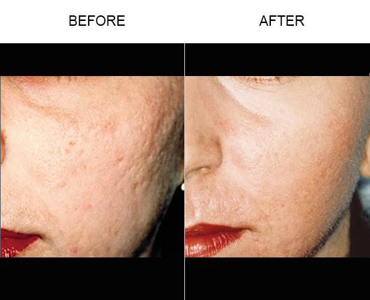 Laser Skin Resurfacing Results