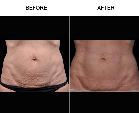 Before & After BodyTite/Thermtight