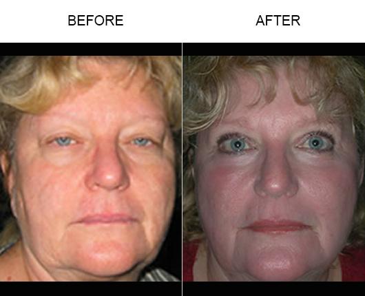 Before & After Laser Skin Resurfacing