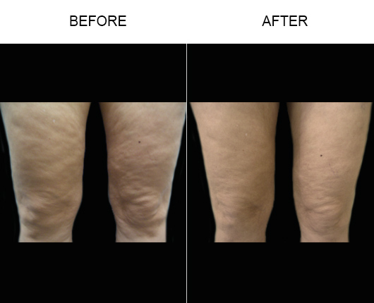 BodyTite/Thermtight Treatment Before & After