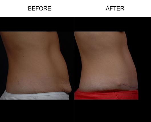 Florida Abdominoplasty Surgery Results