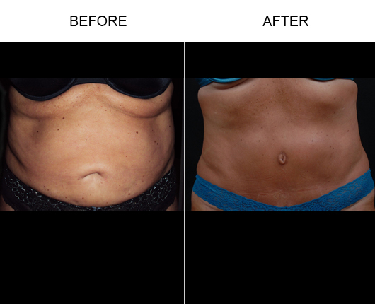 Florida Abdominoplasty Treatment Before And After