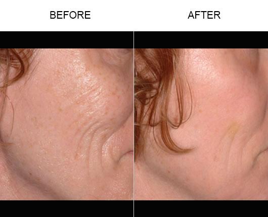 Before & After Fraxel Laser