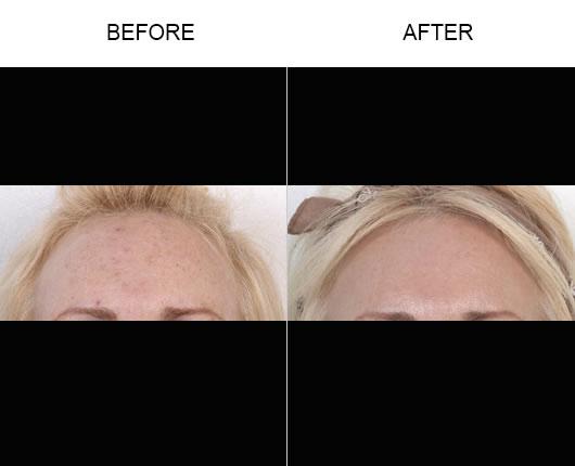 Fraxel Laser Resurfacing Before & After