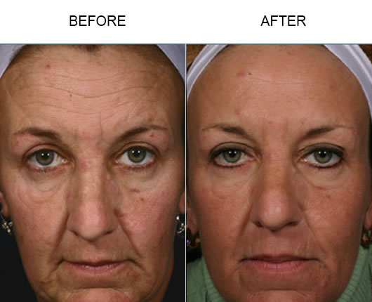 Before And After Fraxel Laser Resurfacing